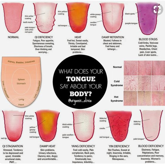 tongue color meaning traditional chinese medicine